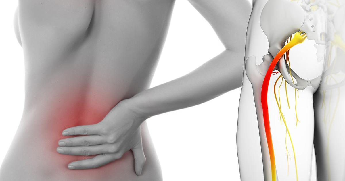 Sciatic Nerve Inflammation - Stretches to relieve sciatic nerve pain
