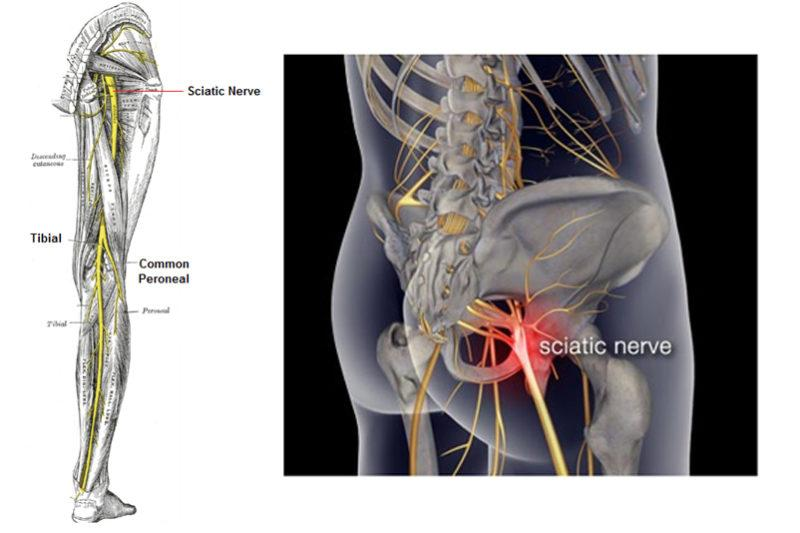 Sciatic Nerve Inflammation Stretches To Relieve Sciatic Nerve Pain